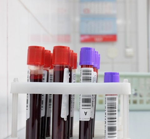 О заготовке плазмы анти-COVID-19